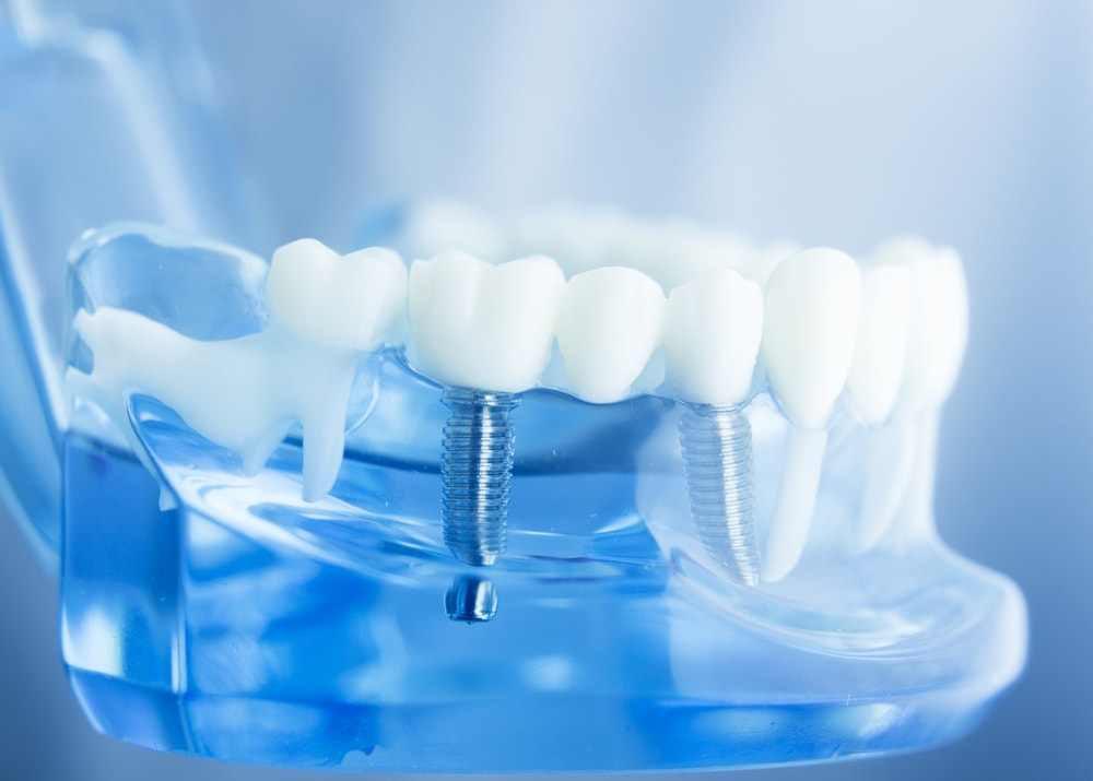 Everything About Implant Restoration - Refresh Dental