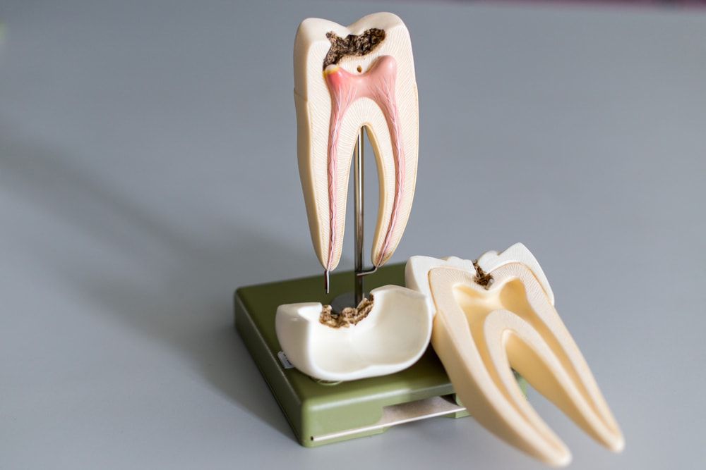 What Are the Stages of Root Canal Treatment? - Refresh Dental